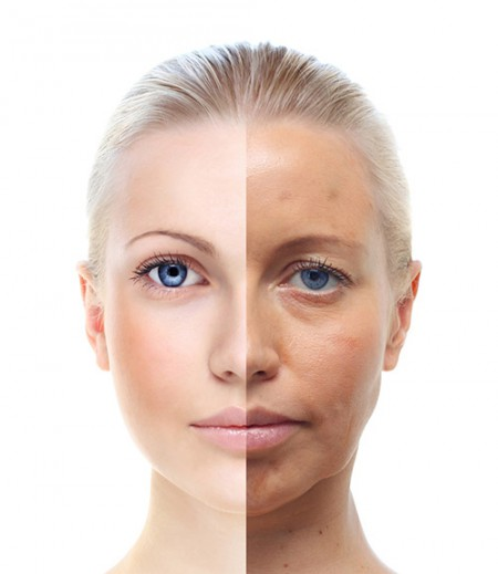skin-conditions-sun-spots